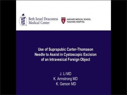 USE OF SUPRAPUBIC CARTER-THOMASON NEEDLE TO ASSIST IN CYSTOSCOPIC EXCISION OF INTRAVESICAL FOREIGN O