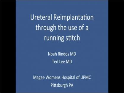 URETERAL REIMPLANTATION THROUGH THE USE OF A RUNNING STITCH