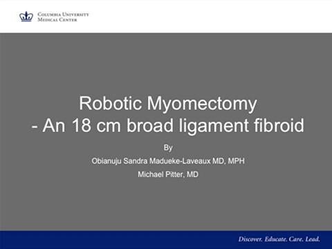 ROBOTIC MYOMECTOMY- AN 18 CM BROAD LIGAMENT FIBROID