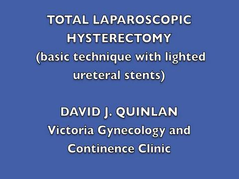 TOTAL LAPAROSCOPIC HYSTERECTOMY - A BASIC TECHNIQUE WITH LIGHTED URETERAL STENTS