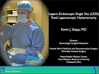 Laparo-Endoscopic Single Site (LESS) Total Laparoscopic Hysterectomy