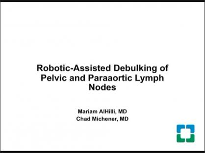 Robotic-assisted debulking of pelvic and paraaortic lymph nodes