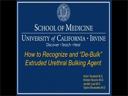 How To Recognize And De-bulk Extruded Urethral Bulking Agent