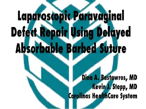 LAPAROSCOPIC PARAVAGINAL DEFECT REPAIR USING DELAYED ABSORBABLE BARBED SUTURE