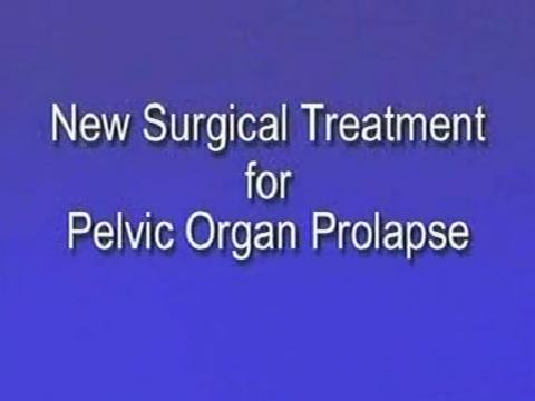 New Surgical Treatment for Pelvic Organ Prolapse