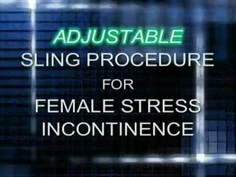 RE-ADJUSTABLE SLING PROCEDURE FOR TREATMENT OF FEMALE STRESS URINARY INCONTINENCE