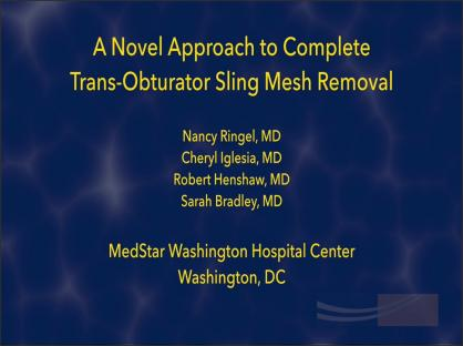 Tips and Tricks: A Novel Approach to Complete Trans-Obturator Sling Mesh Removal