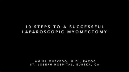 10 STEPS TO A SUCCESSFUL LAPAROSCOPIC MYOMECTOMY