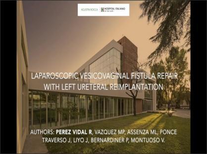 Laparoscopic Vesicovaginal Fistula Repair with Left Ureteral Reimplantation