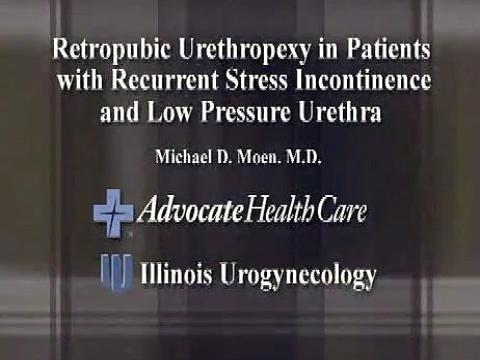 RETROPUBIC URETHROPEXY IN PATIENTS WITH RECURRENT STRESS INCONTINENCE AND LOW PRESSURE URETHRA