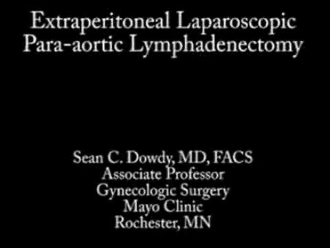 EXTRAPERITONEAL LAPAROSCOPIC PARAAORTIC LYMPHADENECTOMY