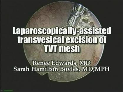 Laparoscopically-assisted transvesical excission of TVT mesh