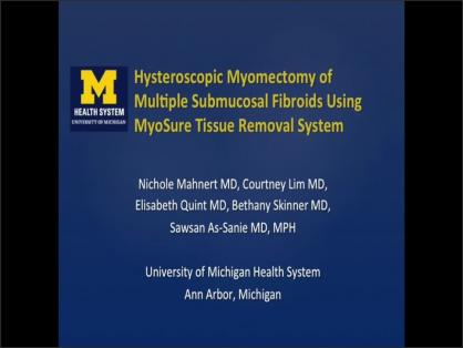 HYSTEROSCOPIC MYOMECTOMY OF MULTIPLE SUBMUCOSAL FIBROIDS WITH MYOSURE TISSUE REMOVAL SYSTEM
