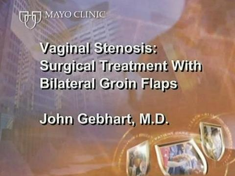 Vaginal Stenosis: Surgical Treatment with Bilateral Groin Flaps