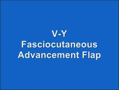 V-Y FASCIOCUTANEOUS ADVANCEMENT FLAP FOR COVERAGE OF LARGE VULVAR DEFECTS