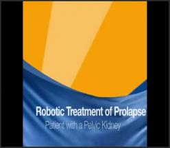 ROBOTIC ASSISTED LAPAROSCOPIC TREATMENT OF PROLAPSE FOR PATIENT WITH PELVIC KIDNEY
