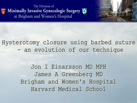 HYSTEROTOMY CLOSURE USING BARBED SUTURE - AN EVOLUTION OF OUR TECHNIQUE