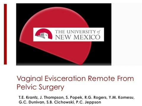 VAGINAL EVISCERATION REMOTE FROM PELVIC SURGERY