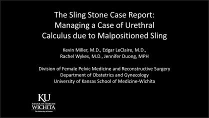 THE SLING STONE CASE REPORT: MANAGING A CASE OF URETHRAL CALCULUS DUE TO MALPOSITIONED SLING