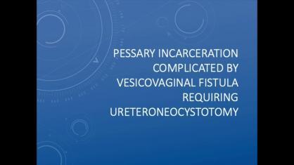 PESSARY INCARCERATION COMPLICATED BY VESICOVAGINAL FISTULA REQUIRING URETERONEOCYSTOSTOMY