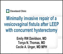 Minimally invasive repair of a vesicovaginal fistula after loop electrosurgical excision procedure w