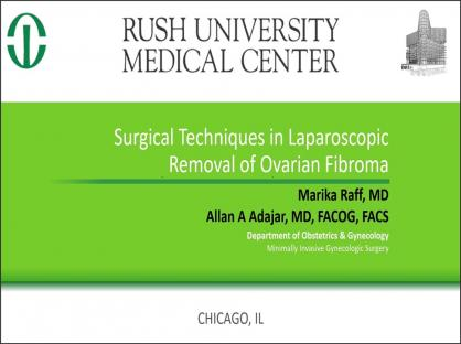 Surgical Techniques in Laparoscopic Removal of Ovarian Fibroma