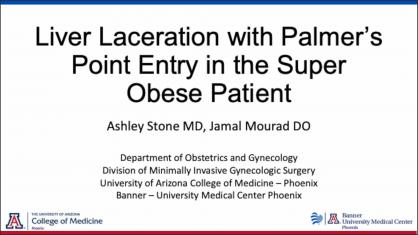 LIVER LACERATION WITH PALMER'S POINT ENTRY IN THE SUPER OBESE PATIENT