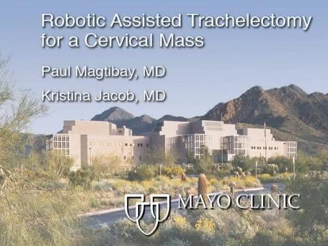 ROBOTIC ASSISTED TRACHELECTOMY FOR A CERVICAL MASS