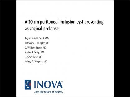 A 20-centimeter peritoneal inclusion cyst presenting as vaginal prolapse