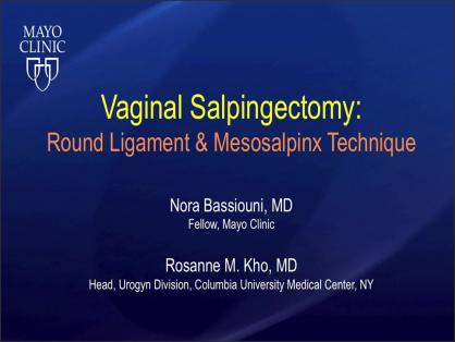 VAGINAL SALPINGECTOMY: ROUND LIGAMENT AND MESOSALPINX TECHNIQUE