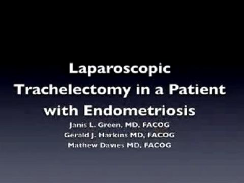 LAPAROSCOPIC TRACHELECTOMY IN A PATIENT WITH ENDOMETRIOSIS