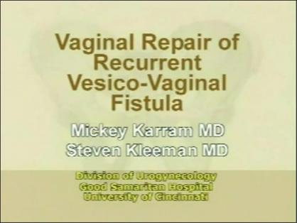 Vaginal Repair of Recurrent Vesico-Vaginal Fistula