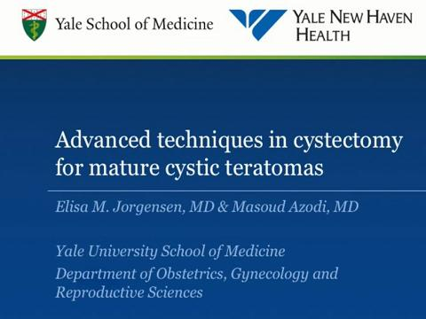 ADVANCED TECHNIQUES IN CYSTECTOMY FOR MATURE CYSTIC TERATOMAS