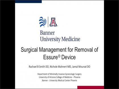 Surgical Management for Removal of Essure® Device