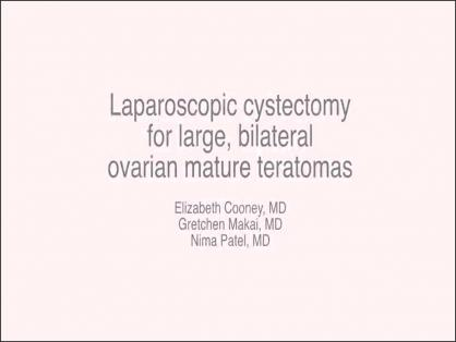 LAPAROSCOPIC CYSTECTOMY OF LARGE, BILATERAL OVARIAN DERMOIDS