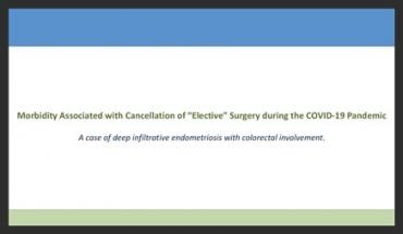 """MORBIDITY ASSOCIATED WITH CANCELLATION OF """"ELECTIVE"""" SURGERY DURING THE COVID-19 PANDEMIC: A CASE OF"""