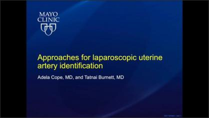 Approaches for Laparoscopic Uterine Artery Identification