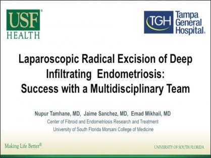 Laparoscopic Radical Excision of Deep Infiltrating Endometriosis: Success with a Multidisciplinary T