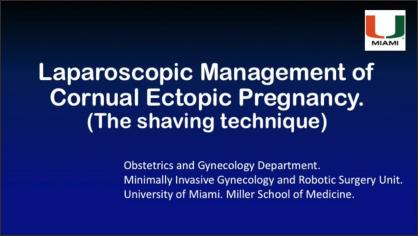 Laparoscopic Management of Cornual Ectopic Pregnancy. The shaving technique.