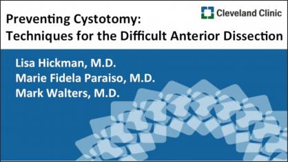 Preventing cystotomy: Techniques for the difficult anterior dissection