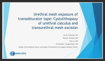 URETHRAL MESH EXPOSURE OF TRANSOBTURATOR TAPE: CYSTOLITHOPAXY OF URETHRAL CALCULUS AND TRANSURETHRAL