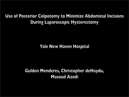USE OF POSTERIOR COLPOTOMY TO MINIMIZE ABDOMINAL INCISIONS DURING LAPAROSCOPIC HYSTERECTOMY