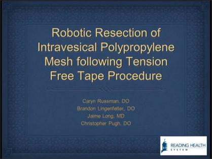 ROBOTIC RESECTION OF INTRAVESICAL POLYPROPYLENE MESH FOLLOWING TENSION FREE TAPE PROCEDURE